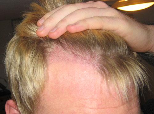 Maschere per capelli da senape e olio di ricino
