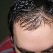 Trapianto di capelli: Fuss, Fue e Hsd a confronto per combattere la calvizie