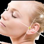 Cos'è l'orecchino che fa dimagrire e come (non) funziona